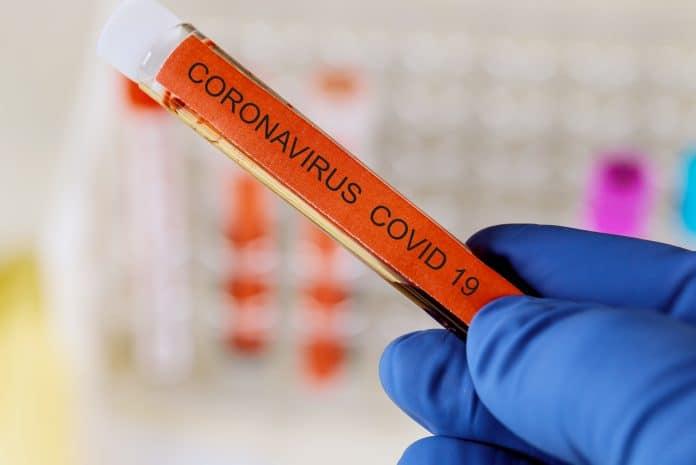Google travaille sur un outil pour se tester au Coronavirus